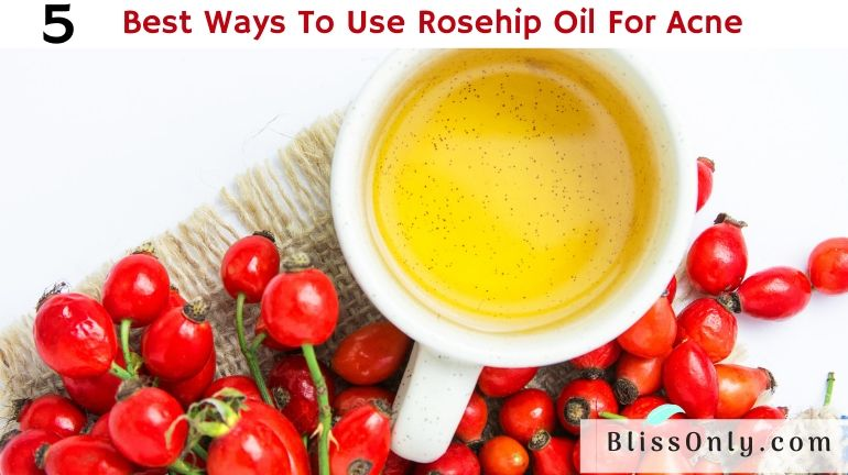 rosehip oil for acne